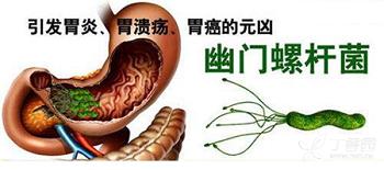岩藻多糖改善胃部不适,靶向清除幽门螺旋杆菌
